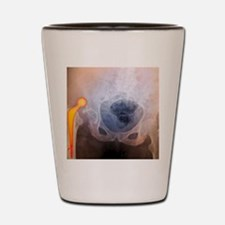 'Dislocated hip prosthesis, X-ray' Shot Glass