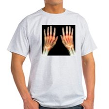 'Rheumatoid arthritis of the hands,  T-Shirt