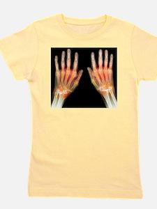 'Rheumatoid arthritis of the hands, X-r Girl's Tee