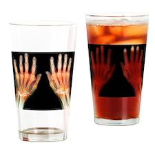 'Rheumatoid arthritis of the hands, Drinking Glass