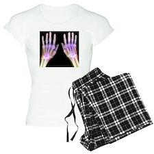 'Rheumatoid arthritis of th pajamas