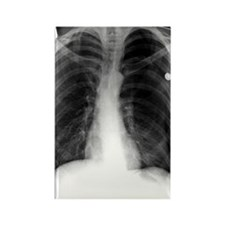 'Pneumothorax, X-ray' Rectangle Magnet