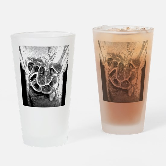 'Fractured wrist bone, MRI scan' Drinking Glass