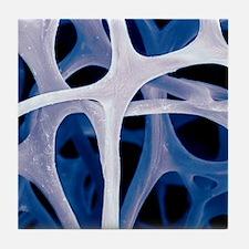 Bird bone tissue, SEM Tile Coaster