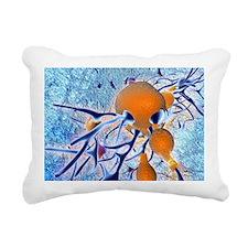Alzheimer's disease, com Rectangular Canvas Pillow