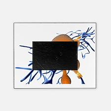 Alzheimer's disease, computer artwor Picture Frame