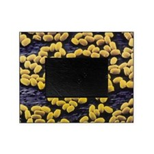 Anthrax bacteria spores Picture Frame