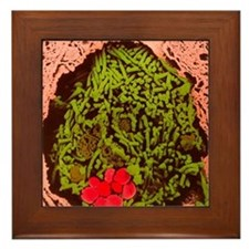 Anthrax bacteria in the lung Framed Tile