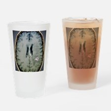 Tapeworm cyst in the brain, MRI sca Drinking Glass