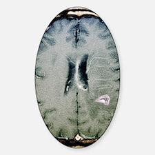 Tapeworm cyst in the brain, MRI sca Decal