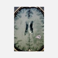 Tapeworm cyst in the brain, MRI s Rectangle Magnet