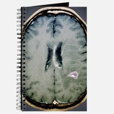 Tapeworm cyst in the brain, MRI scan Journal