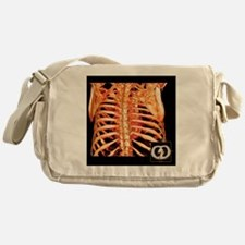 Rib cage and heart, 3D CT scan Messenger Bag