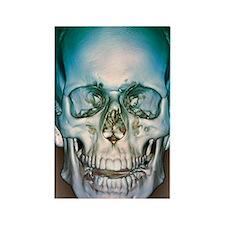 Normal skull, 3D CT scan Rectangle Magnet
