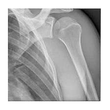 Normal shoulder, X-ray Tile Coaster