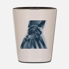 Normal wrist, X-ray Shot Glass