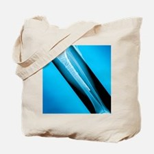 Pinned broken leg, X-ray Tote Bag