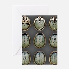 Normal brain, MRI scans Greeting Card