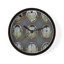 Normal brain, MRI scans Wall Clock