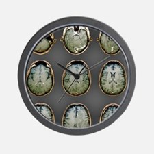 Normal brain, MRI scans Wall Clock
