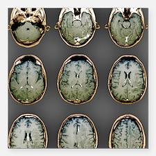 "Normal brain, MRI scans Square Car Magnet 3"" x 3"""