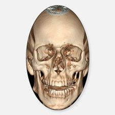Normal skull, 3D CT scan Decal