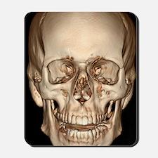 Normal skull, 3D CT scan Mousepad