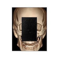 Normal skull, 3D CT scan Picture Frame