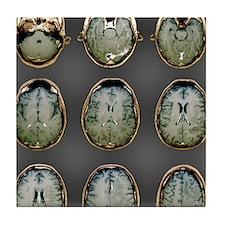 Normal brain, MRI scans Tile Coaster