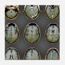 Normal brain, MRI scans Tile Coaster