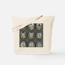 Normal brain, MRI scans Tote Bag