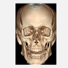 Normal skull, 3D CT scan Postcards (Package of 8)