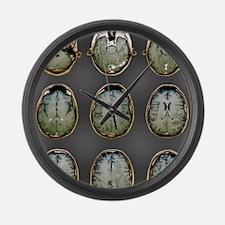 Normal brain, MRI scans Large Wall Clock