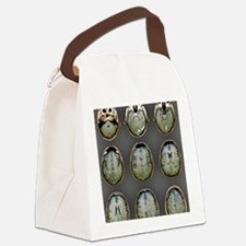 Normal brain, MRI scans Canvas Lunch Bag