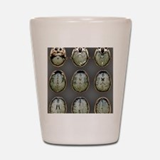 Normal brain, MRI scans Shot Glass