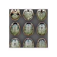 "Normal brain, MRI scans Square Sticker 3"" x 3"""