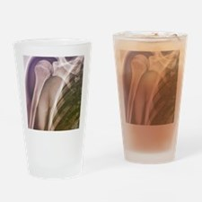 Normal shoulder, X-ray Drinking Glass