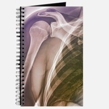 Normal shoulder, X-ray Journal