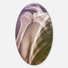 Normal shoulder, X-ray Sticker (Oval)