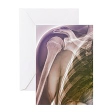 Normal shoulder, X-ray Greeting Card