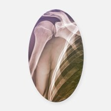 Normal shoulder, X-ray Oval Car Magnet
