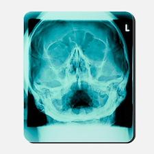 Healthy skull, X-ray Mousepad