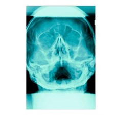 Healthy skull, X-ray Postcards (Package of 8)