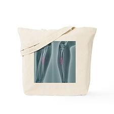 Broken arm, X-ray Tote Bag