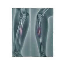Broken arm, X-ray Throw Blanket