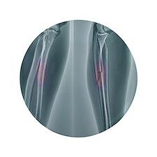 """Broken arm, X-ray 3.5"""" Button"""