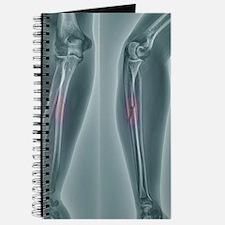 Broken arm, X-ray Journal