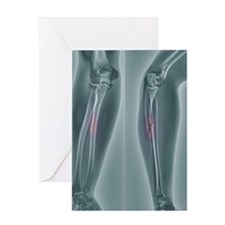 Broken arm, X-ray Greeting Card