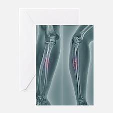 Broken arm, X-ray Greeting Card