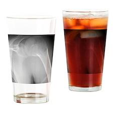 Broken shoulder, X-ray Drinking Glass